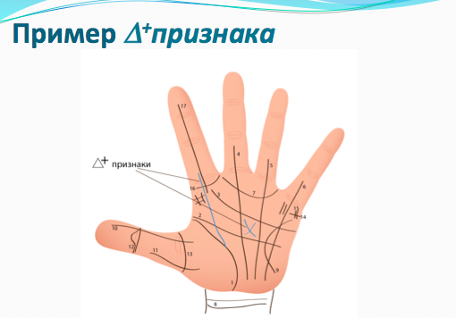 привет, дополнительные линии на руке УМФЦ Агрызского муниципального